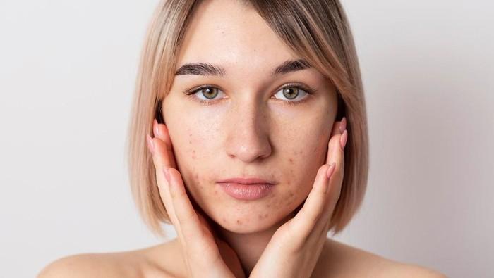 4 Rekomendasi Masker Organik BPOM, Tuntaskan Jerawat dan Masalah di Wajah Lainnya
