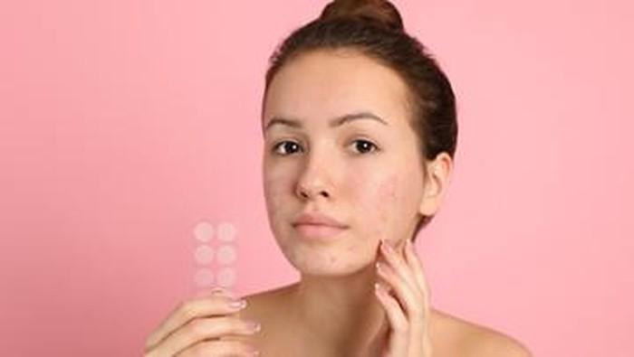 5 Rekomendasi Acne Patch Terbaik untuk Tutupi Hingga Redakan Masalah Jerawat, Ada yang Pernah Kamu Coba?