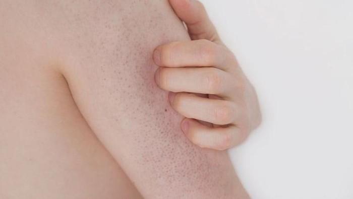 Sering Dialami oleh Remaja, Ketahui  Masalah Kulit Keratosis Pilaris atau Chicken Skin