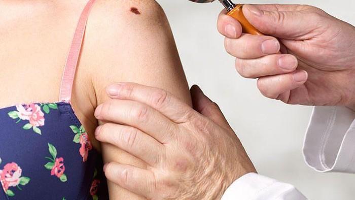 7 Masalah Kulit Paling Umum yang Sebaiknya Tidak Diagnosa Sendiri, Bahaya!