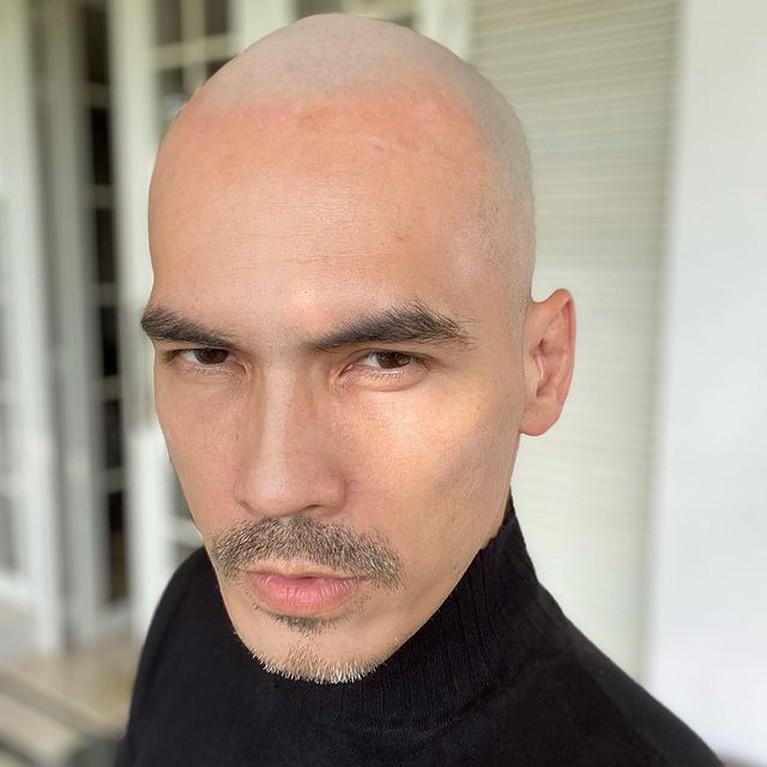 Penampilan terbaru Atalarik Syach sangat berbeda dari biasanya. Yuk kita intip potretnya dengan kepala botak!