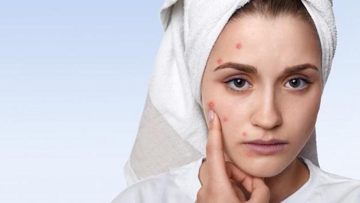 5 Tanda Ini Buktikan Kamu Alergi Kosmetik, Jangan Beli Produk Sembarangan Lagi Ya!