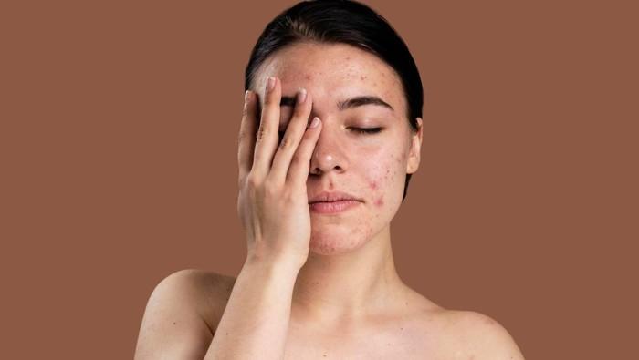 Jangan Lagi Dipakai, Inilah 5 Tanda Produk Skincare Tidak Cocok untuk Kulit Wajahmu!