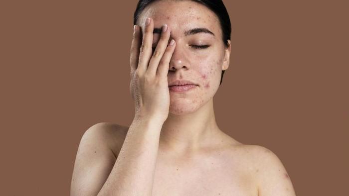 Rangkaian Perawatan Kulit Berjerawat dari Skincare Lokal, Harga Tiap Produk di Bawah Rp100 Ribu!