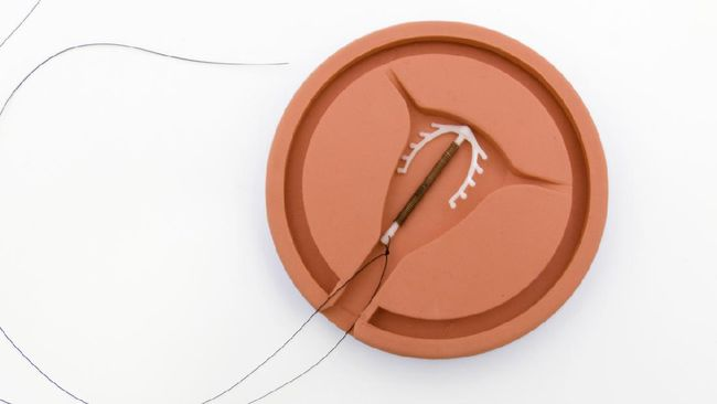 Hari Kontrasepsi Sedunia (World Contraception Day) diperingati tiap 26 September 2021. Tahun ini Hari Kontrasepsi menyoroti dampak Covid-19.