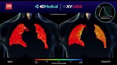 VIDEO: Melihat Paru-paru Manusia yang Alami Long Covid